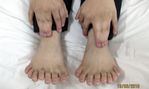 31-fingers-and-toes.jpg
