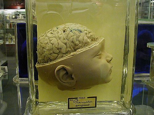 Baby Brain Vrolik Museum