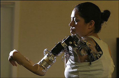 claudia-mitchell-bionic-arm.jpg