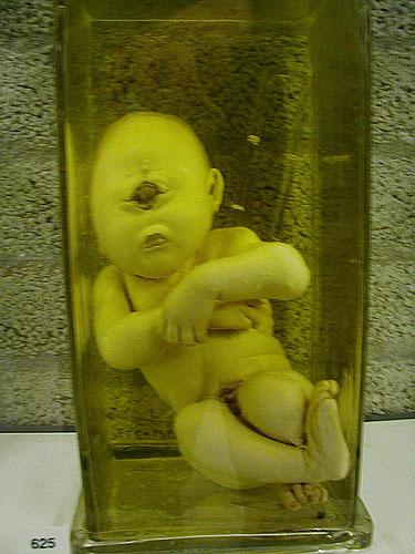 Cyclops baby in Vrolik Museum