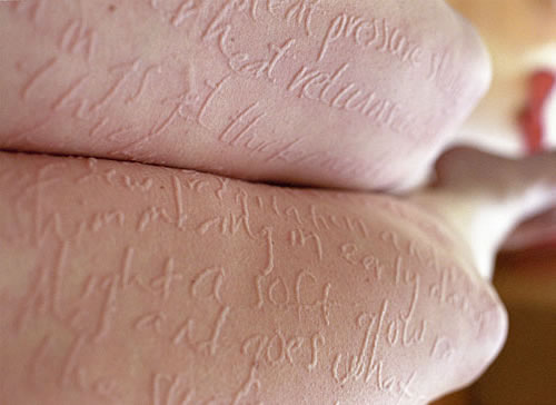 dermatographia-itchy-art-russell-2.jpg