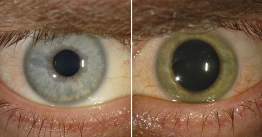 ebola-eye-color