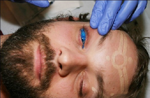 to say to this image gallery detailing the world's first eyeball tattoo.