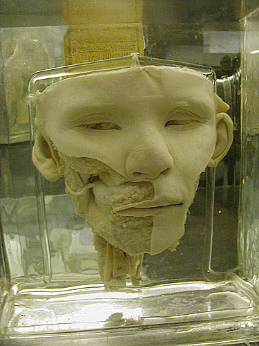 Face peeled back in Vrolik Museum