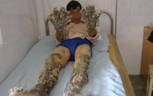 Dede Kosawa is the Tree Man of Java, whose multiple surgeries to remove