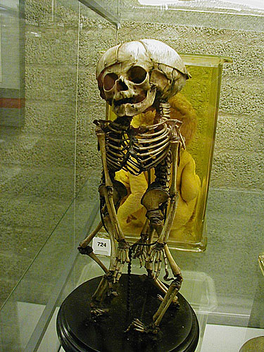 skeleton in Vrolik Museum