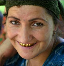 tajikistan_gold_teeth.jpg