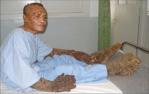 "Known as the ""Tree Man"" because of the bark-like consistency of"